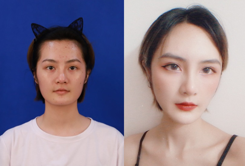 脸颊没肉显老没精神,美极医疗美容医院做个自体脂肪全脸填充就能变得更美