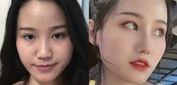 鼻子太大显得比同龄人老?上海长征医院做个鼻综合就让你青春十岁