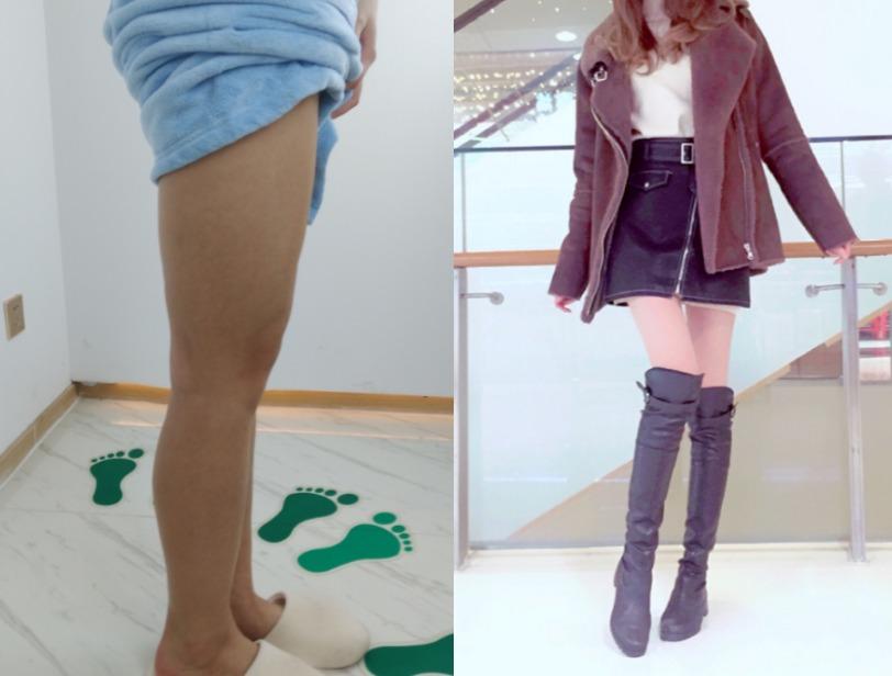身材还行但大腿太粗了?没关系,到康美美容医院做个吸脂保你身材匀称