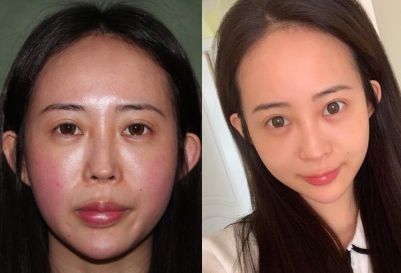 脸部两边不对称,做一个埋线提升就能达到想要的效果