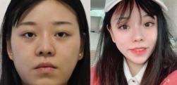 长大后脸变得太方,做下颌角手术让你回到小时候