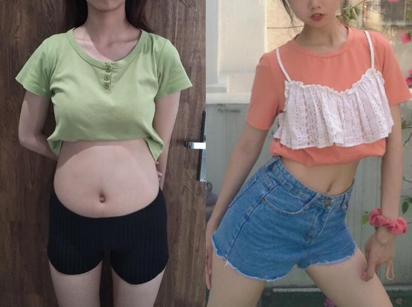 小肚腩影响自己的气质,在北京卓彦丽格做个腰腹吸脂身体就变轻盈了