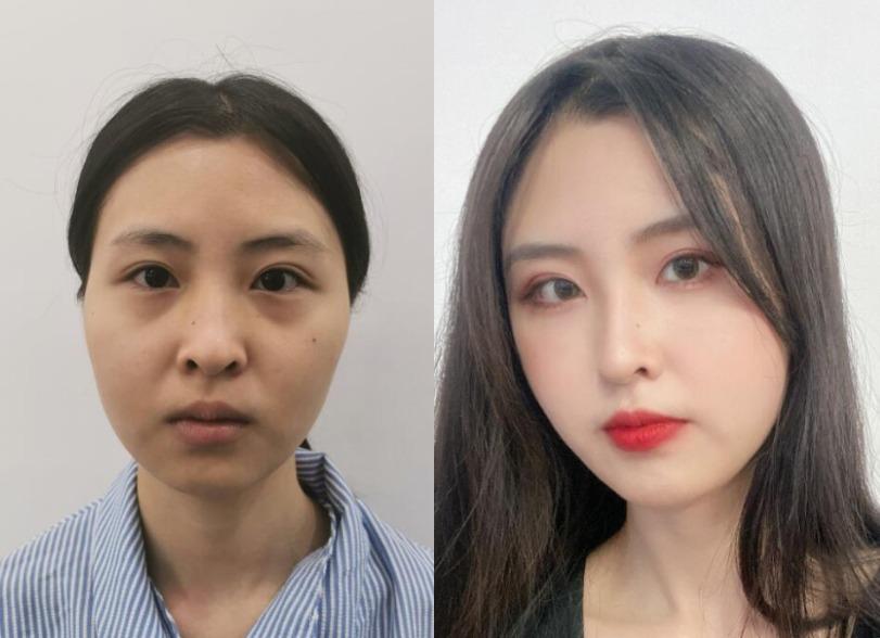 脸上该有肉的地方干巴巴,上海星辰做了个自体脂肪面部填充效果很好
