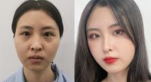 脸上该有肉的地方干巴巴,上海星辰做了个自体脂肪面部填充效果很好...