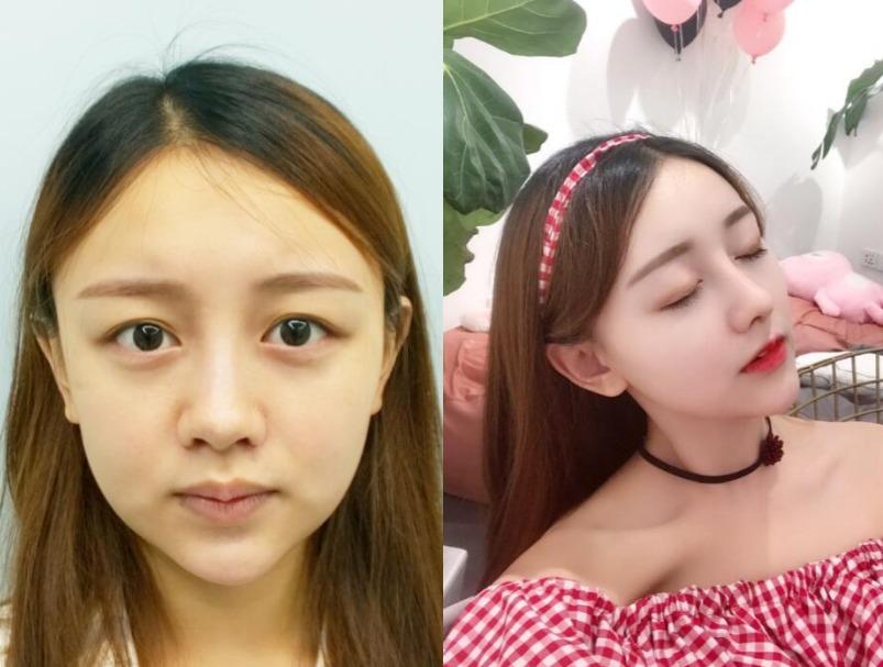玻尿酸不能改善鼻子缺点,那就到南京艺星做个鼻综合一劳永逸吧