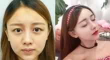 玻尿酸不能改善鼻子缺点,那就到南京艺星做个鼻综合一劳永逸吧...