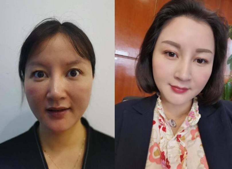 刚三十岁皮肤问题都来了,上海新形象做个埋线提升让你早点变年轻