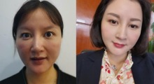 刚三十岁皮肤问题都来了,上海新形象做个埋线提升让你早点变年轻...