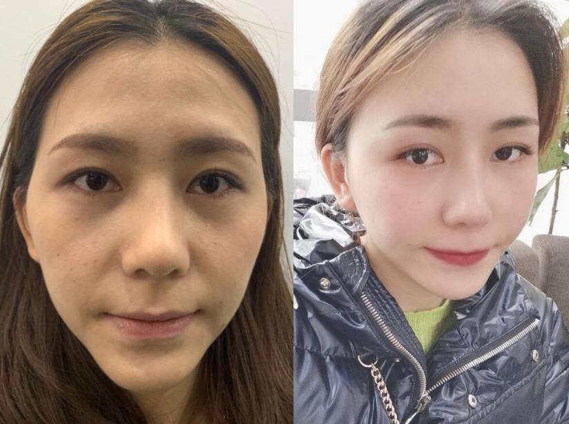 二十几岁被大学生叫阿姨,在长春亚韩做面部脂肪填充重回青春