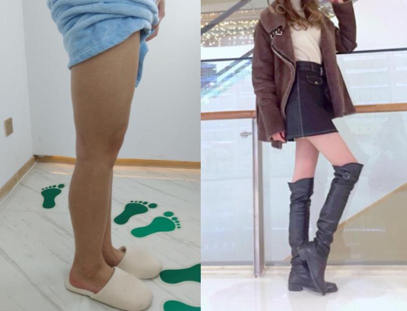 身材还行大腿很粗,在上海美立方做大腿吸脂就能变好看