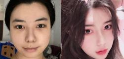 想要电视剧里女主角小巧的脸蛋,在广州科大整形做完面部吸脂后梦想成真