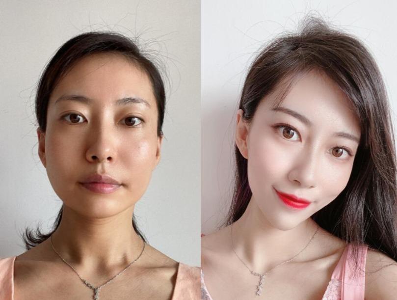 同学会前提升皮肤状态,就在北京五洲妇儿做热玛吉吧