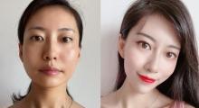 同学会前提升皮肤状态,就在北京五洲妇儿做热玛吉吧...