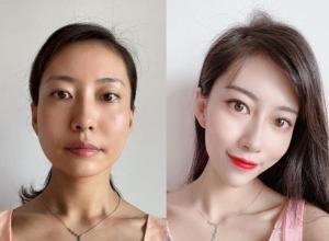 同学会前提升皮肤状态,就在北京