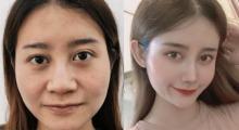 玻尿酸隆鼻效果不长久,在辽宁协和整形做鼻综合一步到位...
