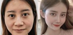 玻尿酸隆鼻效果不长久,在辽宁协和整形做鼻综合一步到位