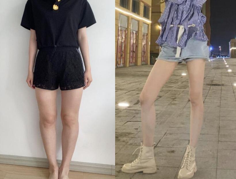 腿型难看不能穿紧身裤,在天津伊美尔整形做了大腿吸脂之后就好看了