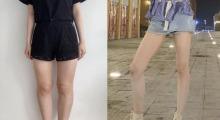 腿型难看不能穿紧身裤,在天津伊美尔整形做了大腿吸脂之后就好看了...