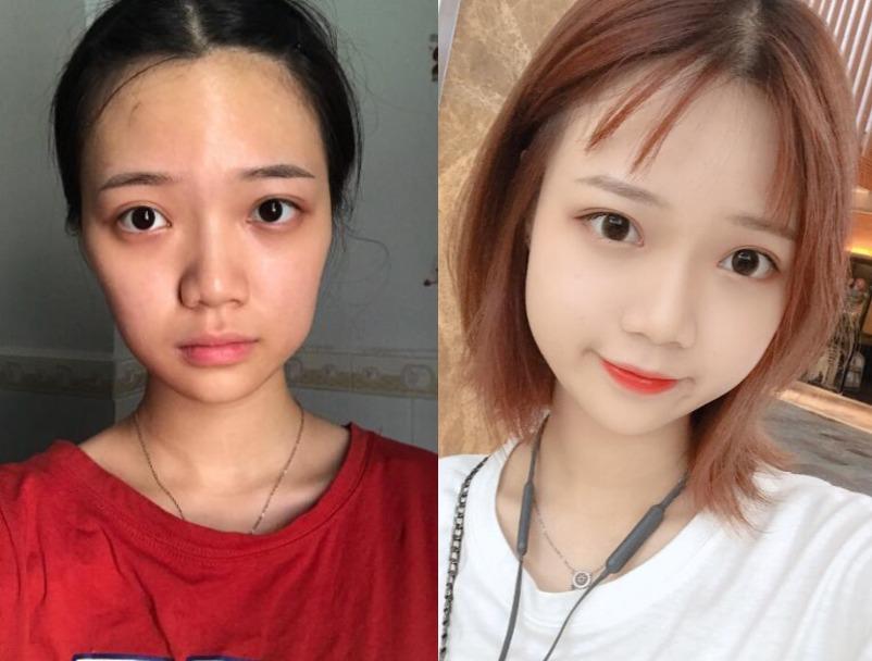 20多岁大妈脸,在杭州时光医疗做自体脂肪面部填充变成可爱女孩子
