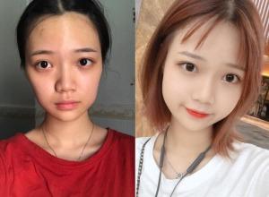 20多岁大妈脸,在杭州时光医疗