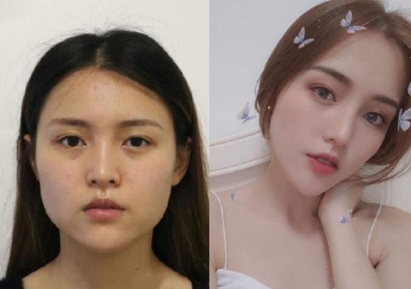 想要一张精致小脸,在上海美莱美容做完下颌角即刻拥有