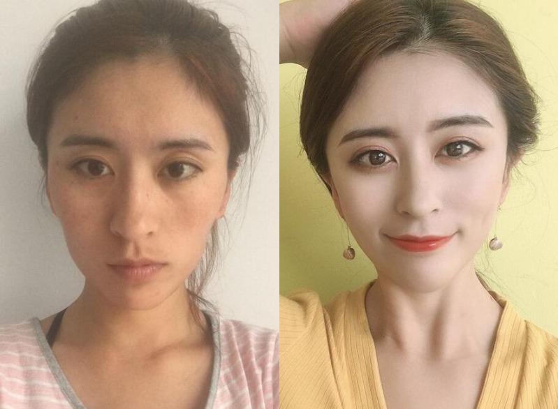 朋友变美了自己心痒痒,在武汉华亚美容院做自体脂肪面部填充后我也变美了