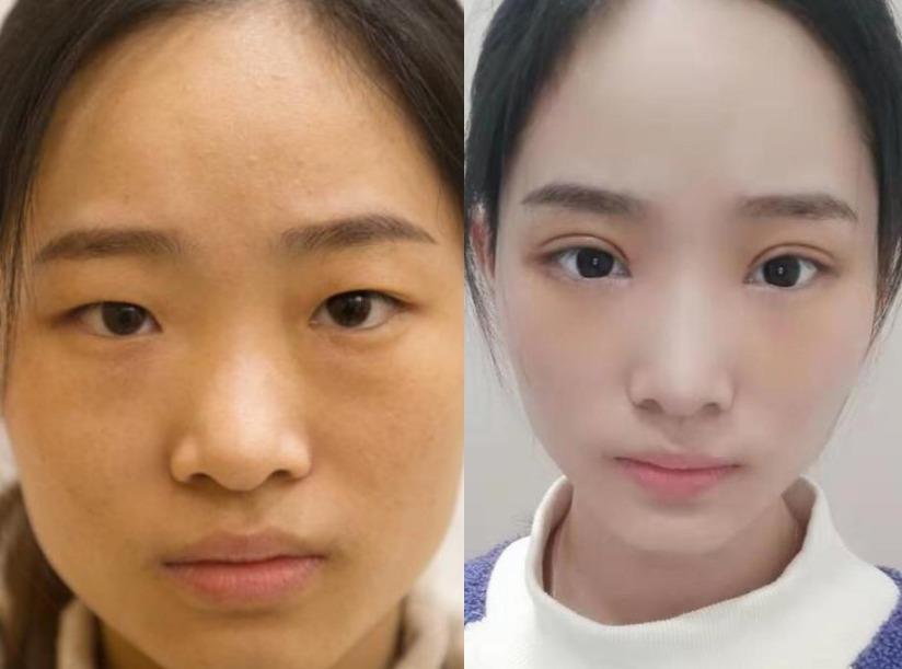 双眼皮贴把眼皮越贴越松,在长沙星雅医疗美容做完双眼皮手术告别双眼皮贴