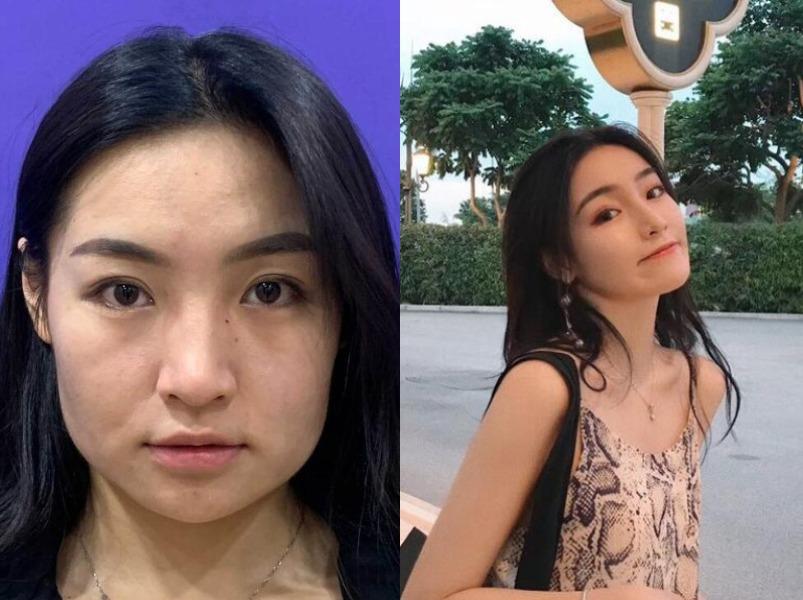 年龄增加皮肤变松,是时候去上海美莱美容医院做热玛吉了