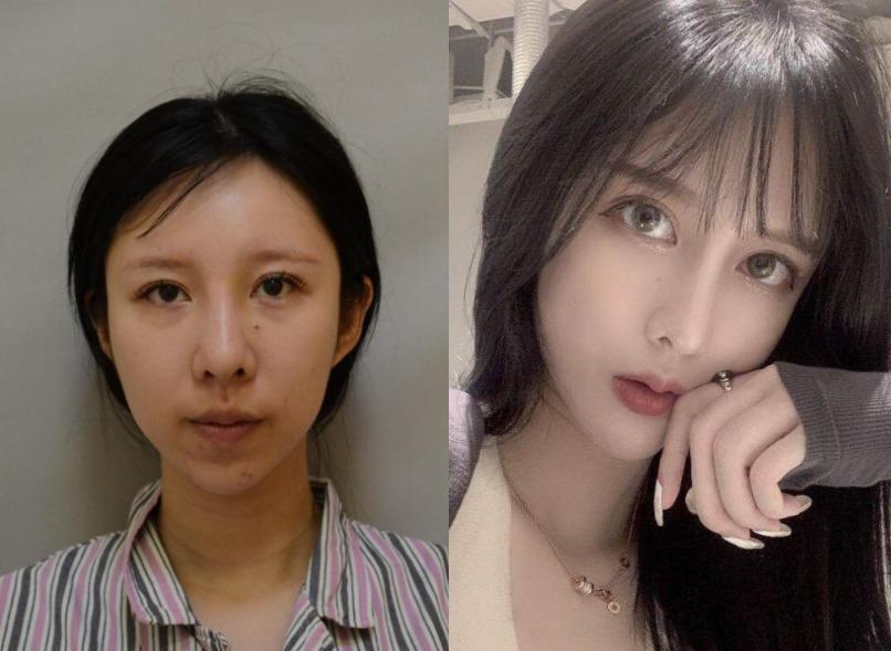 下巴后缩严重,在天津伊曼医疗美容做完硅胶垫下巴立即拥有好看的下巴弧度
