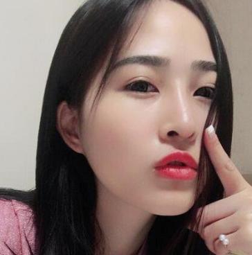 膨体隆鼻手术案例分享,没有人会拒绝美