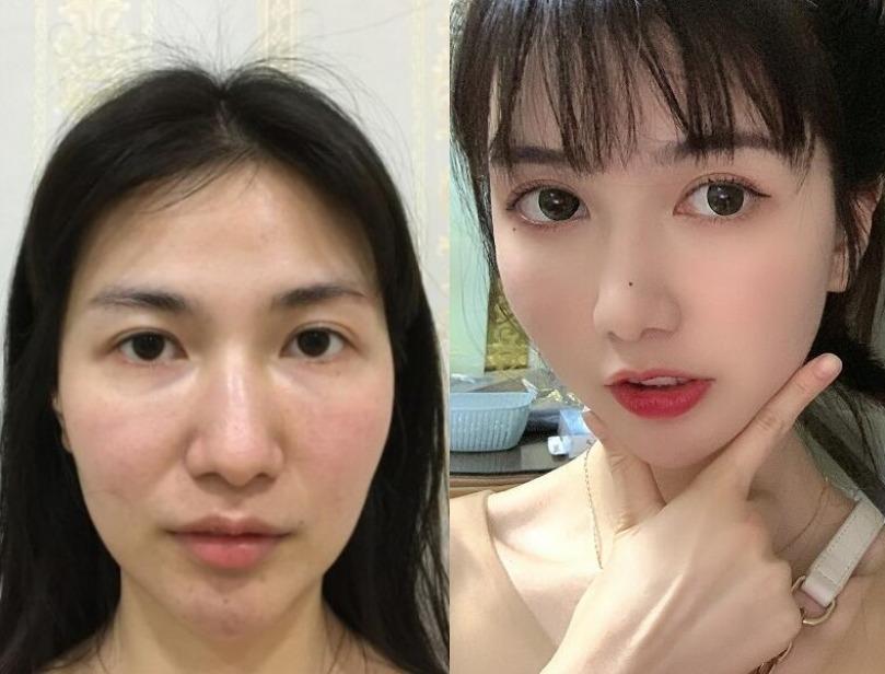 突然变美变年轻了,那肯定是在上海华安整形做了自体脂肪面部填充了
