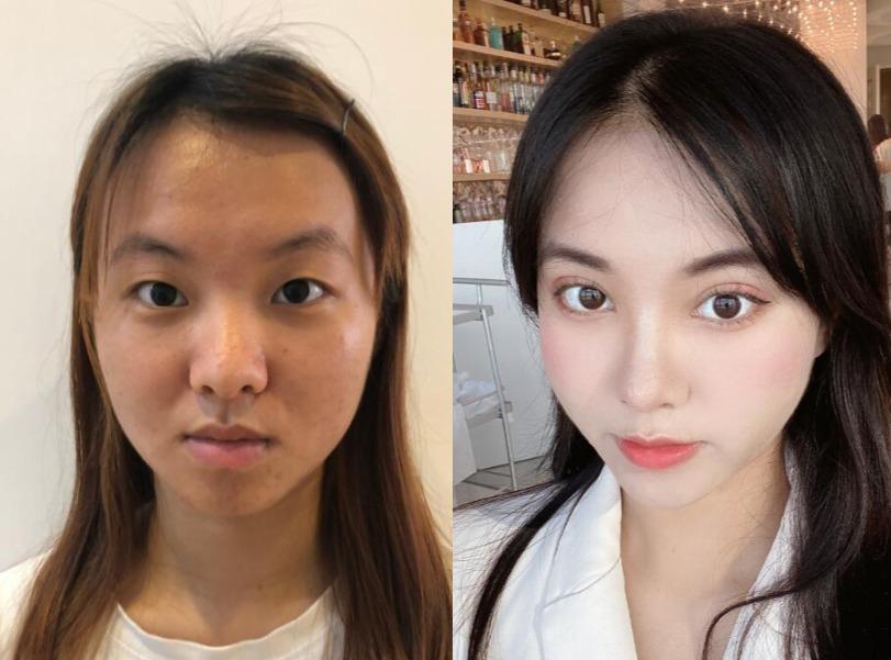 眼皮被双眼皮贴粘松弛了,直接在保定韩美美容做眼综合就一劳永逸