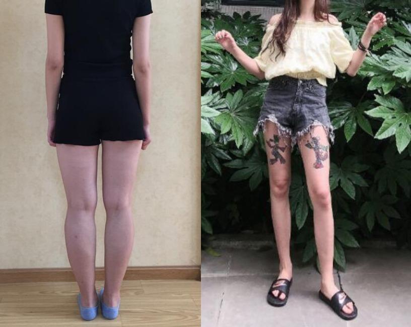 大腿太胖一点都不性感,在长春医美做完大腿吸脂待遇变好了