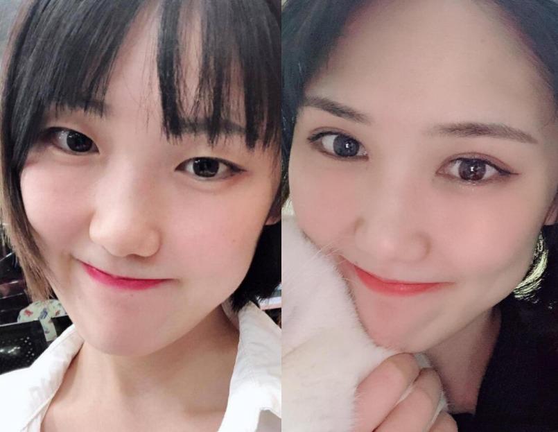 单眼皮眼睛太小,在上海富华医疗美容做完双眼皮秒变灵动大眼