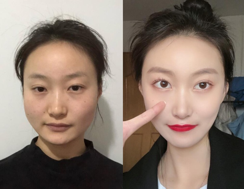 害怕还是想变成小v脸,在宁波吾悦做的下颌角手术效果很好很开心