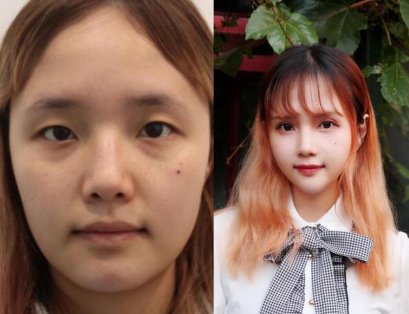 变成双眼皮肯定更好看,在北京美莱医疗美容做双眼皮圆了我的梦
