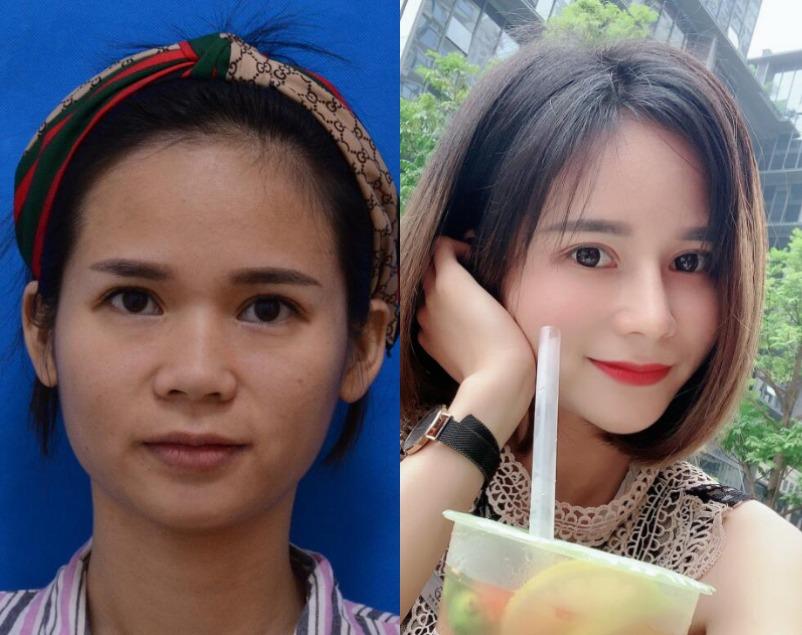美丽意识觉醒后觉得鼻子好丑,在杭州益安医疗美容做完自体肋软骨隆鼻后一秒变美