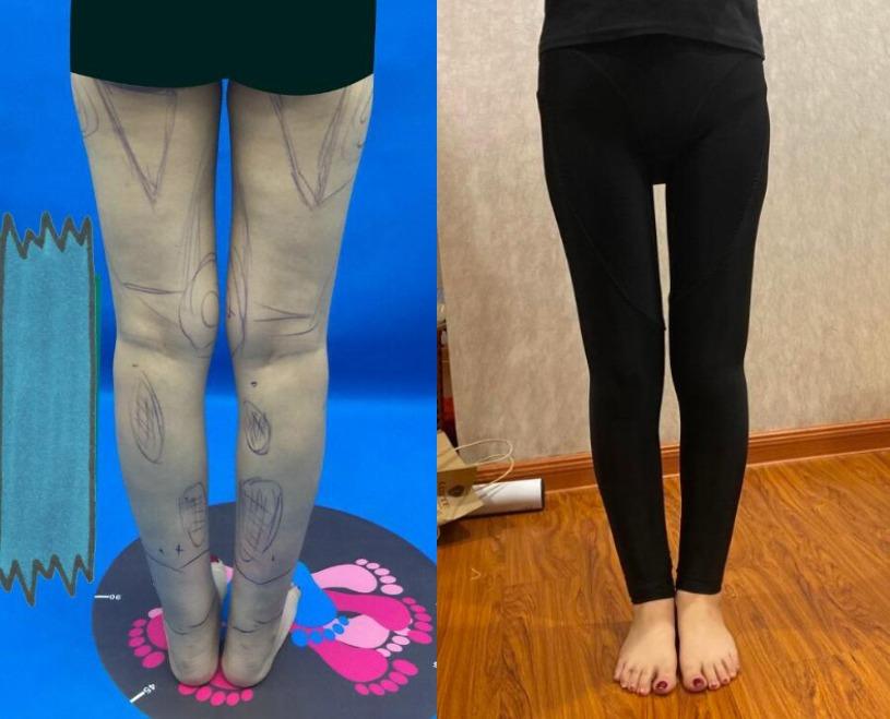 上身80斤下身100斤,在北京壹加壹医疗美容做完大腿吸脂终于平衡了