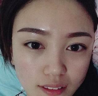 内却祛眼袋手术效果分享,感觉自己好像年轻了有十岁!