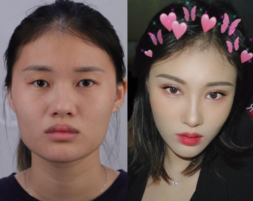 眼皮不对称,在上海湘南做完双眼皮对称又好看