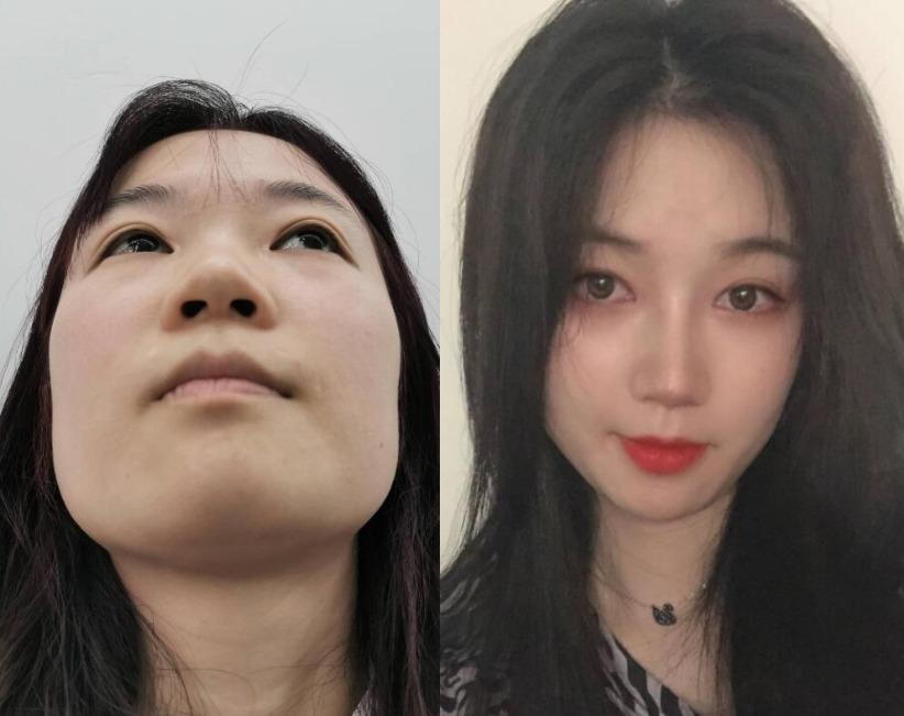 蒜头鼻妹子也想要秀气的鼻子,在上海名格做完隆鼻气质风格都变了