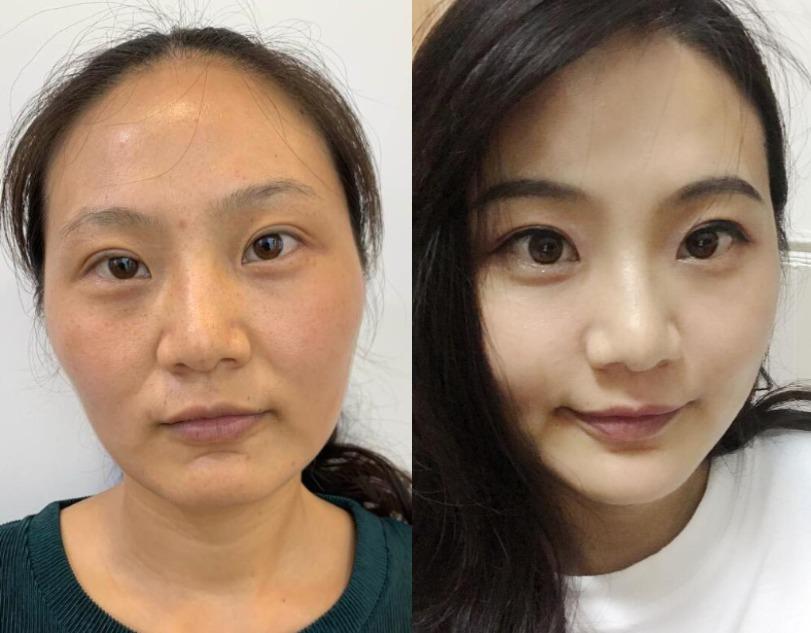 平淡生活也要美丽迷人,在合肥大韩医疗美容做完自体脂肪全脸填充后我变年轻了