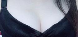 自体脂肪填充丰胸案例分享,瘦身丰胸两不误