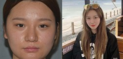 k脸上肉多没有气质,在南京欧华医疗美容做完吸脂瘦脸小脸越来越精致