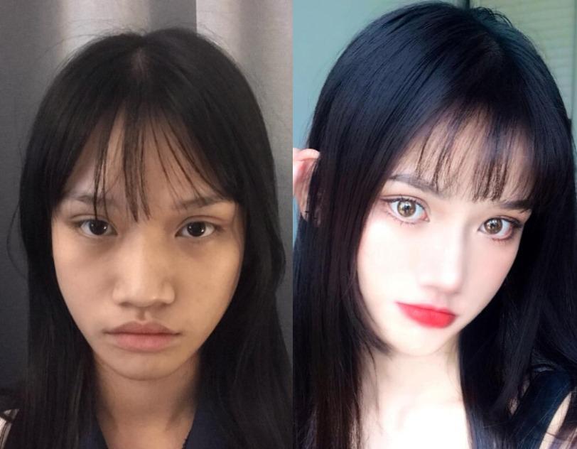 鼻子宽边肥大好邋遢,在上海美联臣医疗美容做完膨体隆鼻秒变小美女~