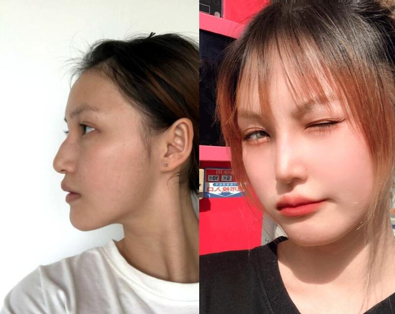 以前的鼻子做得太失败,在南京艺星修复之后就好自然了