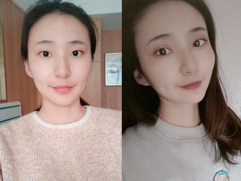 眉毛都不想画何况贴双眼皮贴,不如在长春爱美医疗美容做眼综合一劳永逸