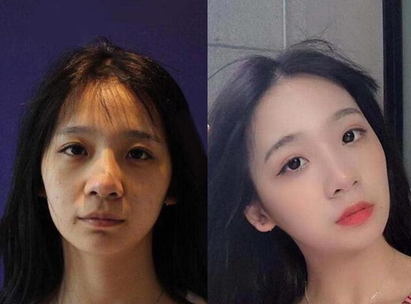 皮肤松弛出门被叫阿姨,在杭州瑞丽做完热玛吉一下就变年轻了