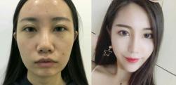 下巴又短又方,在上海美仑医疗美容做了硅胶垫下巴之后超级美丽~