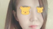 北京知音医疗美容隆鼻改善,看我膨体隆鼻的效果如何...